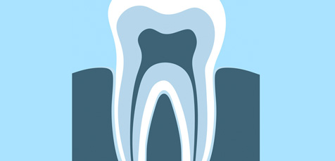 singleton dental, karori dentist, dentist karori, wellington dentist